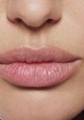 Контурная пластика губ: выбор препарата