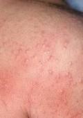 От чего бывает аллергия?